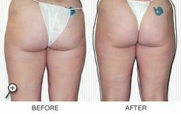 Best Cellulite Treatment by Beautiful Skin by Carmen