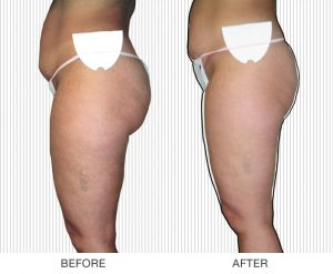 Best Cellulite Treatment Orlando Skin By Carmen Lumicell