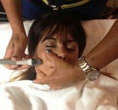 microdermabrasion in Orlando for acne scars