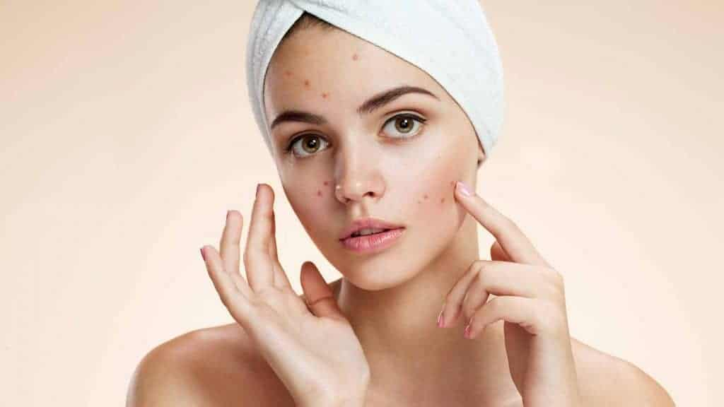 Sneaky Causes of Acne