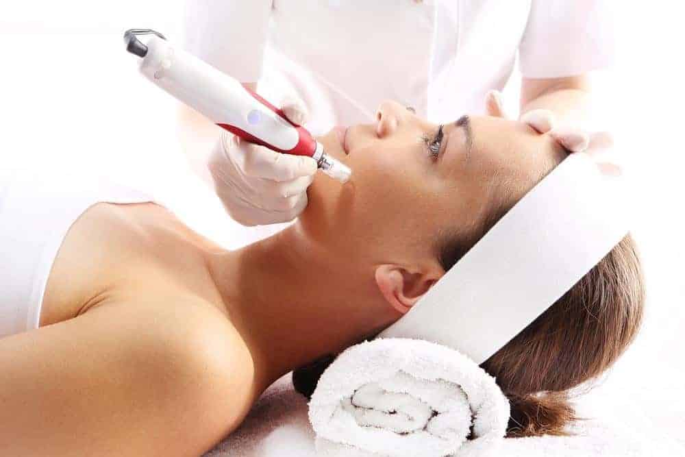 How Does Microneedling Work?